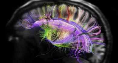 rainbow-brain
